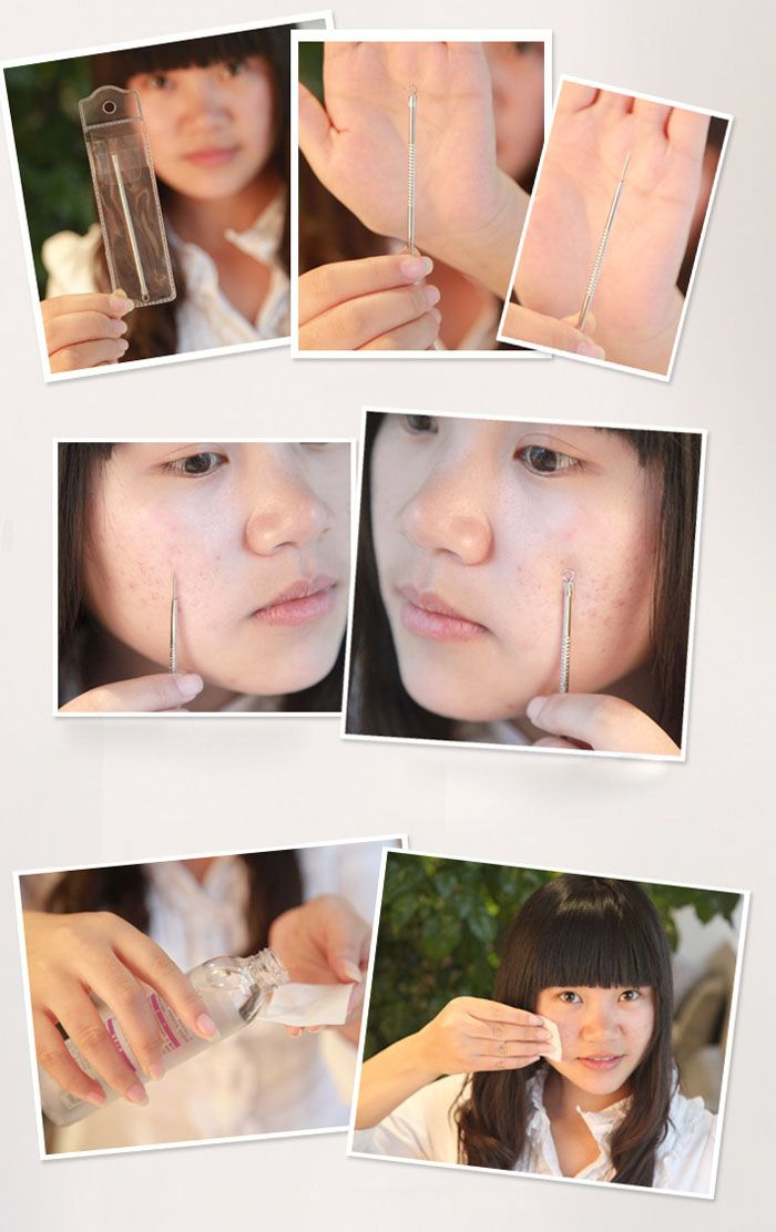 Stainless Steel Antimicrobic Blackhead Blemish Remover Acne Pimple Extractor Needle